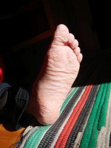 Schrumpliger Fuß, der lange im Wasser war